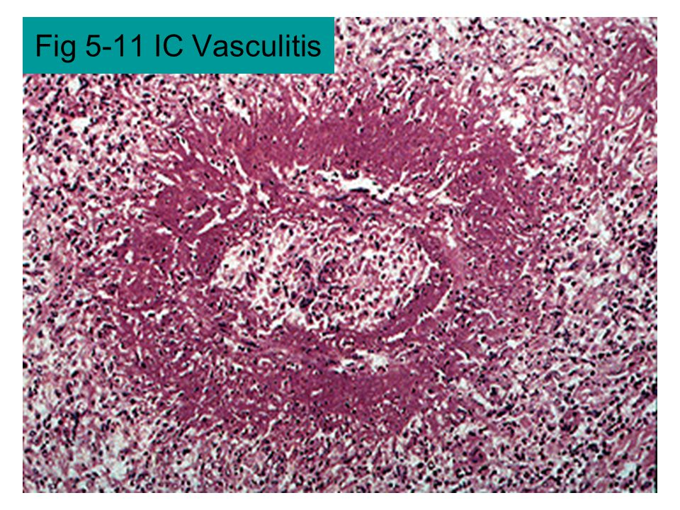 Fig 5-11 IC Vasculitis