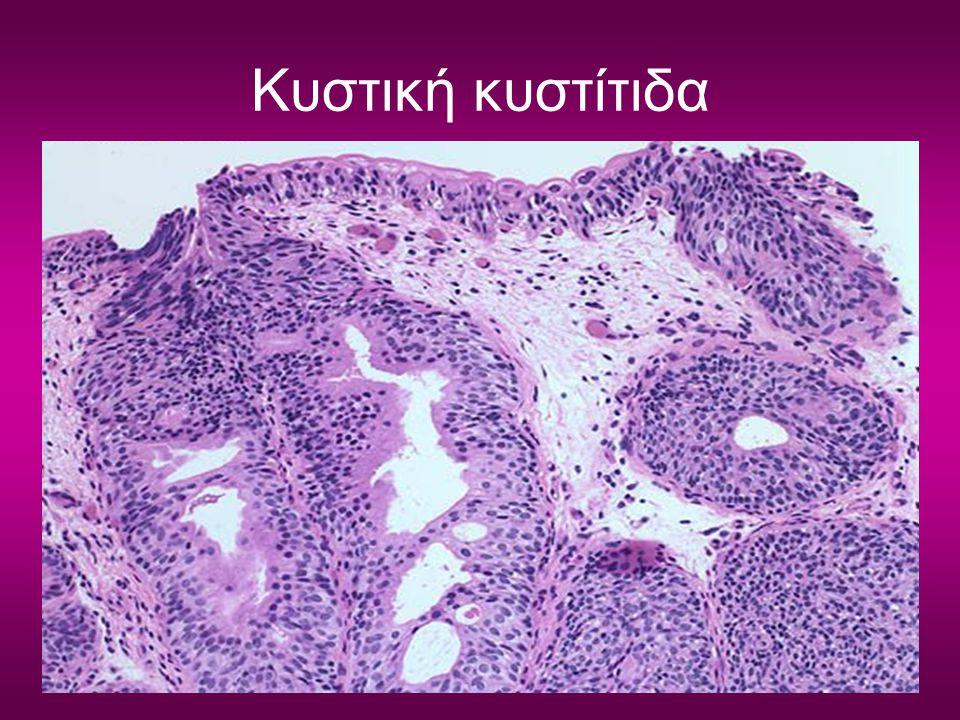 Κυστική κυστίτιδα