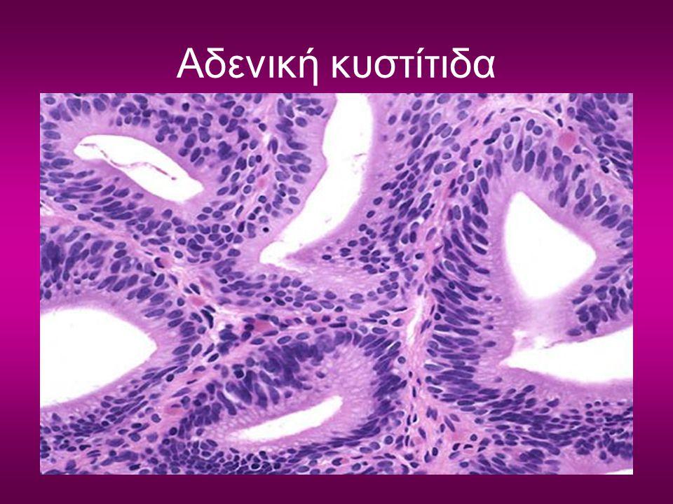 Αδενική κυστίτιδα