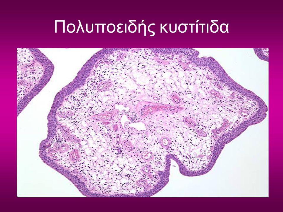 Πολυποειδής κυστίτιδα