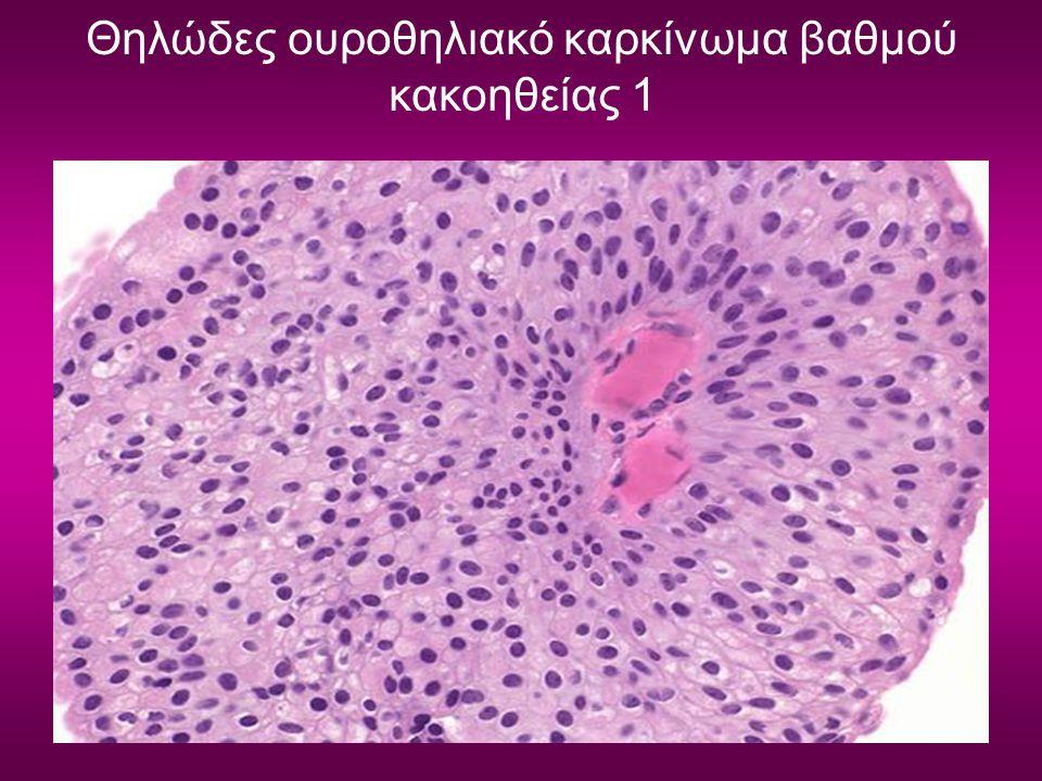 Θηλώδες ουροθηλιακό καρκίνωμα βαθμού κακοηθείας 1