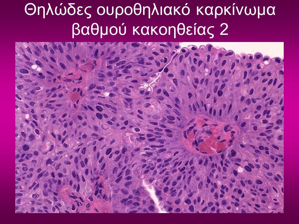 Θηλώδες ουροθηλιακό καρκίνωμα βαθμού κακοηθείας 2
