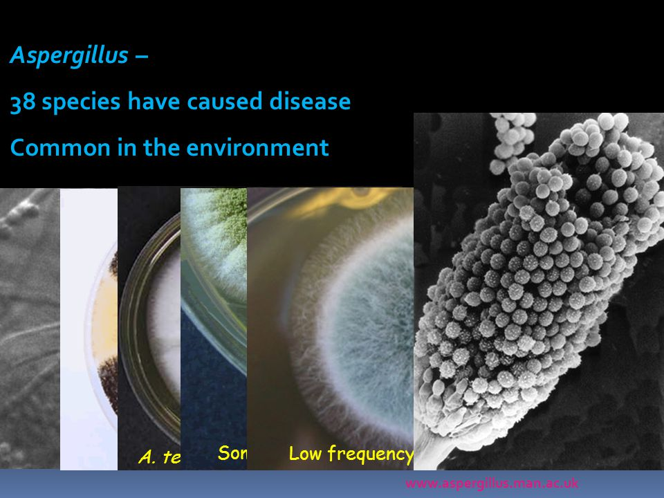 38 species have caused disease Common in the environment