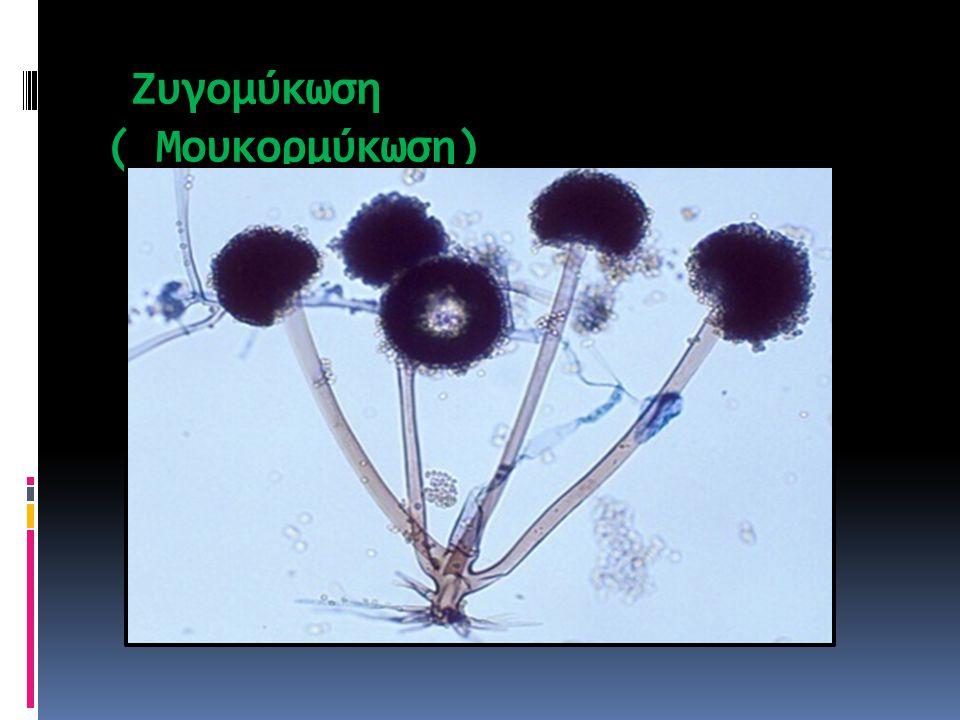 Ζυγομύκωση ( Μουκορμύκωση)