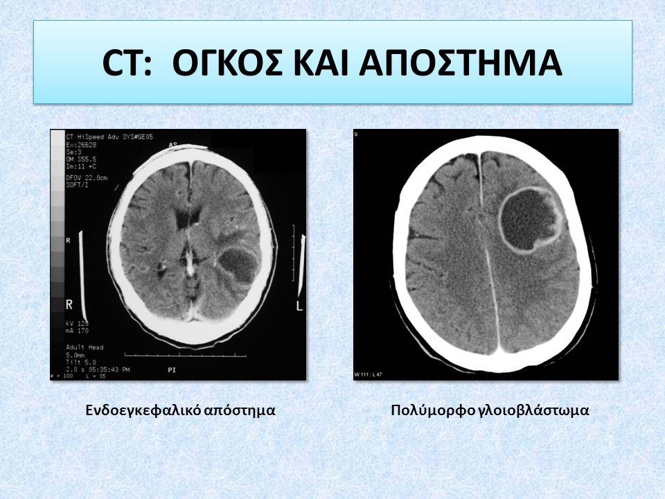 Ενδοεγκεφαλικό απόστημα Πολύμορφο γλοιοβλάστωμα