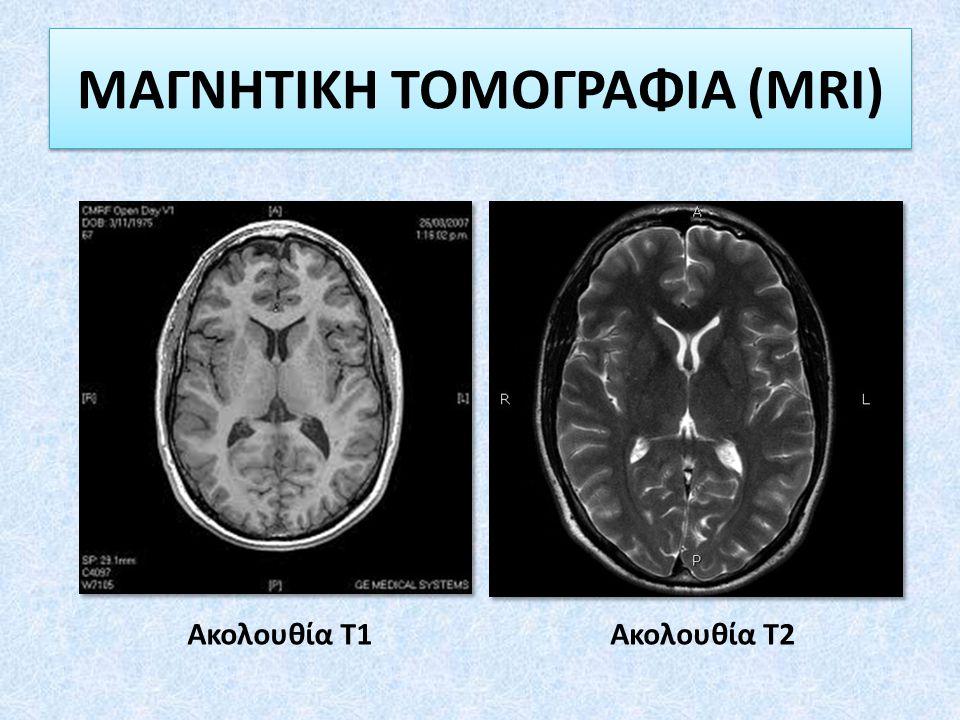ΜΑΓΝΗΤΙΚΗ ΤΟΜΟΓΡΑΦΙΑ (MRI)