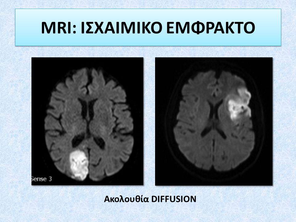 MRI: ΙΣΧΑΙΜΙΚΟ ΕΜΦΡΑΚΤΟ