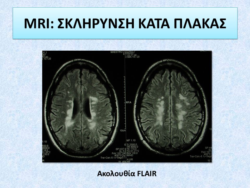 MRI: ΣΚΛΗΡΥΝΣΗ ΚΑΤΑ ΠΛΑΚΑΣ