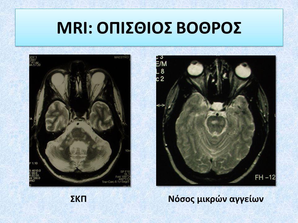 MRI: ΟΠΙΣΘΙΟΣ ΒΟΘΡΟΣ ΣΚΠ Νόσος μικρών αγγείων
