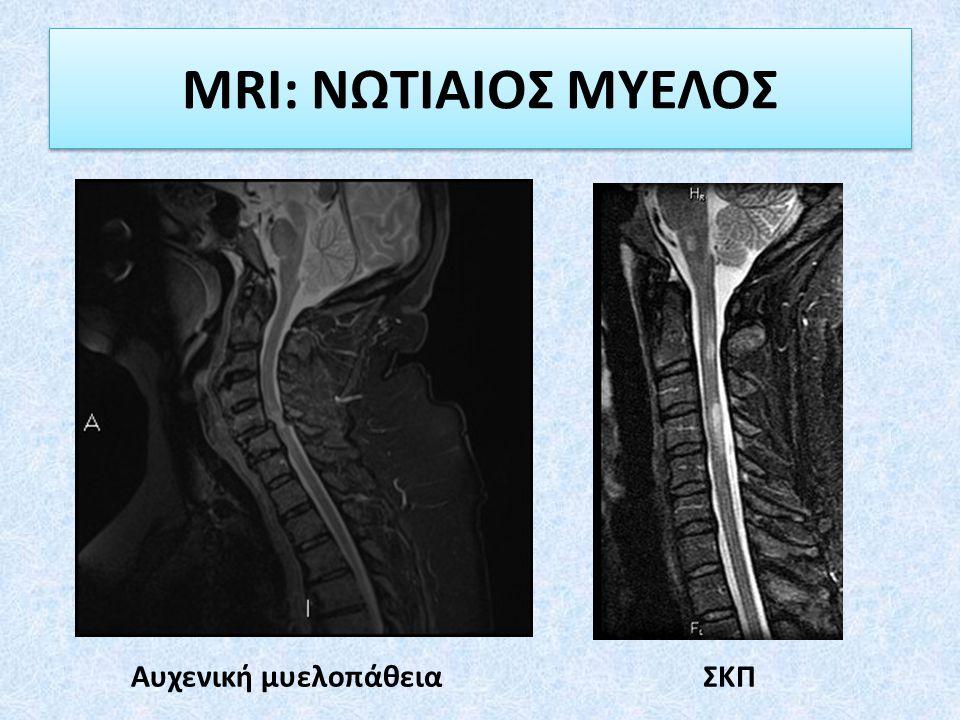 MRI: ΝΩΤΙΑΙΟΣ ΜΥΕΛΟΣ Αυχενική μυελοπάθεια ΣΚΠ