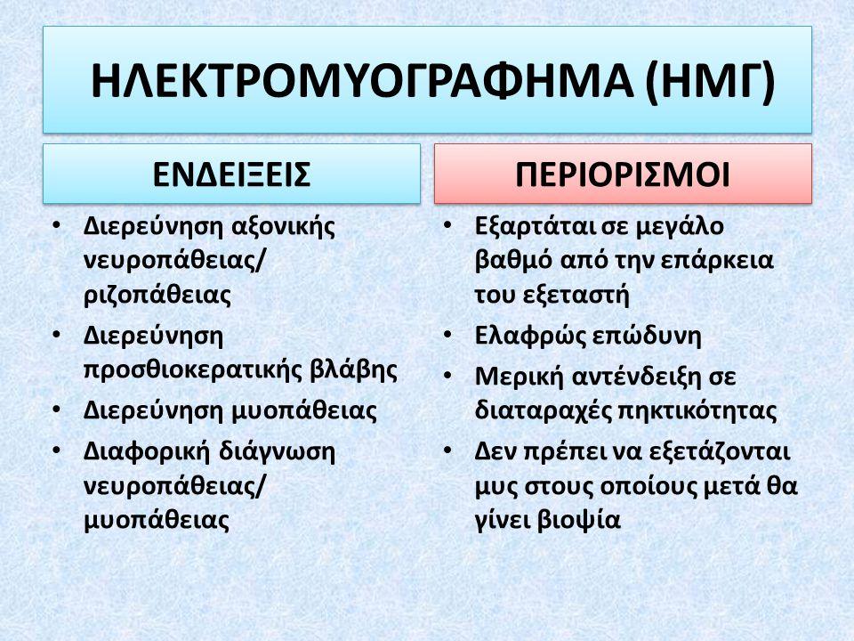 ΗΛΕΚΤΡΟΜΥΟΓΡΑΦΗΜΑ (ΗΜΓ)