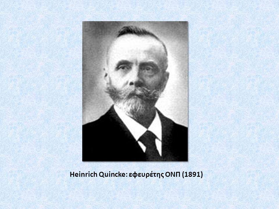 Heinrich Quincke: εφευρέτης ΟΝΠ (1891)