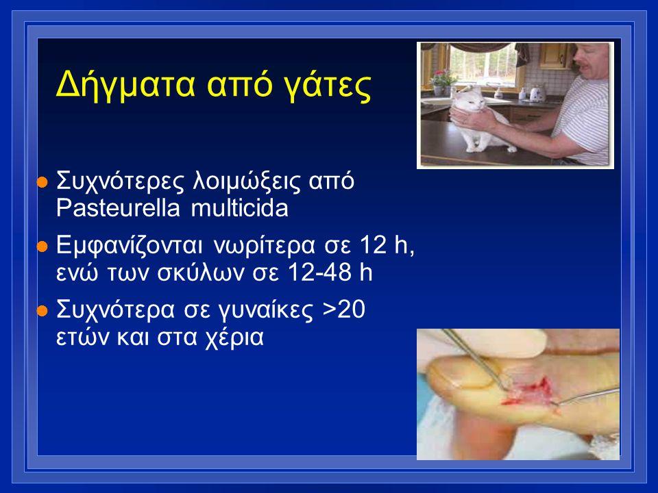 Δήγματα από γάτες Συχνότερες λοιμώξεις από Pasteurella multicida