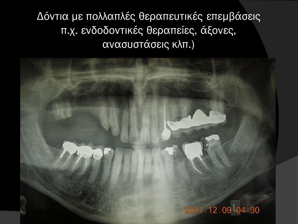 Δόντια με πολλαπλές θεραπευτικές επεμβάσεις π. χ