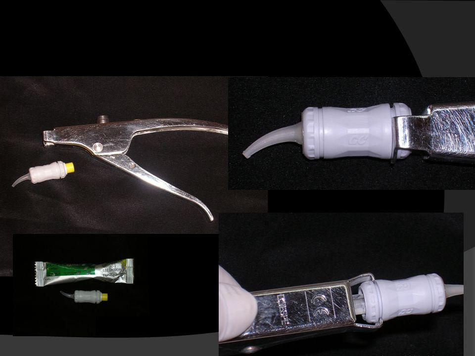 Ημιμόνιμη/προσωρινή έμφραξη με κάψουλα υαλοϊονομερούς υλικού