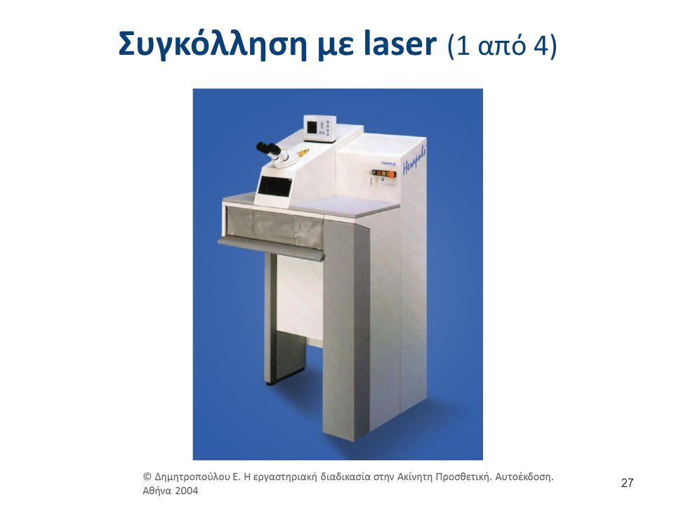 Συγκόλληση με laser (2 από 4)