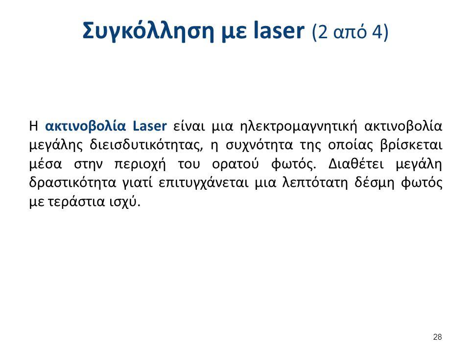 Συγκόλληση με laser (3 από 4)