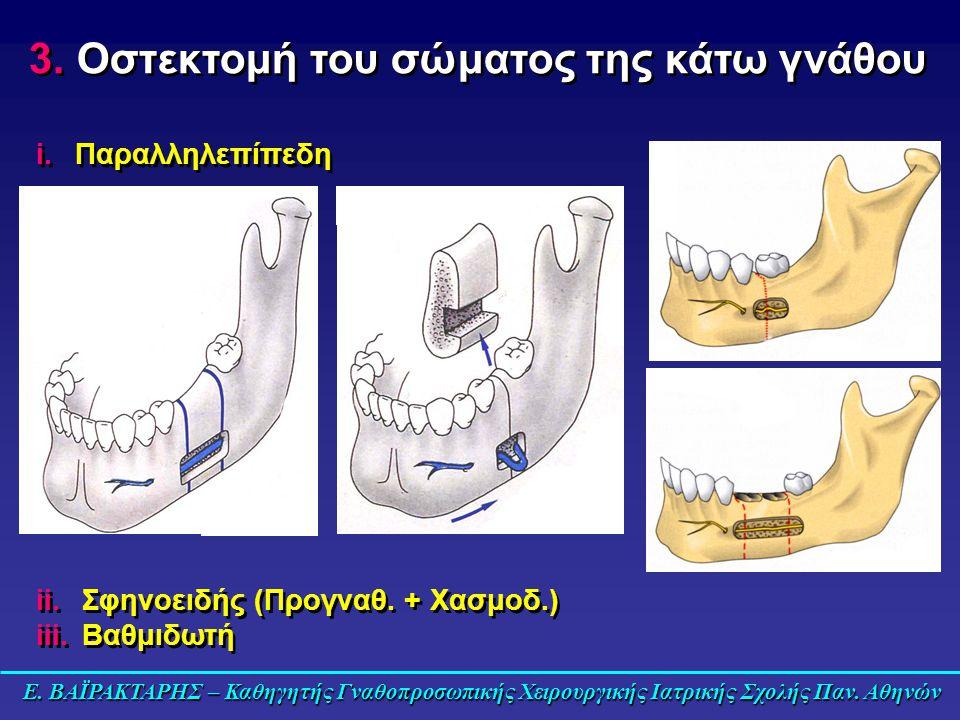 Οστεκτομή του σώματος της κάτω γνάθου