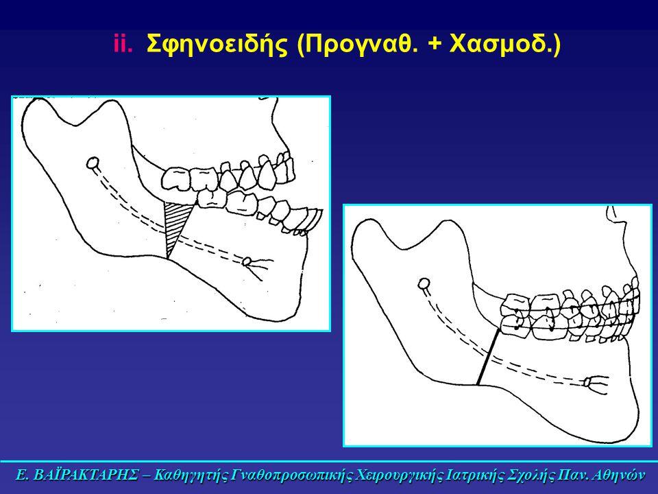 Σφηνοειδής (Προγναθ. + Χασμοδ.)