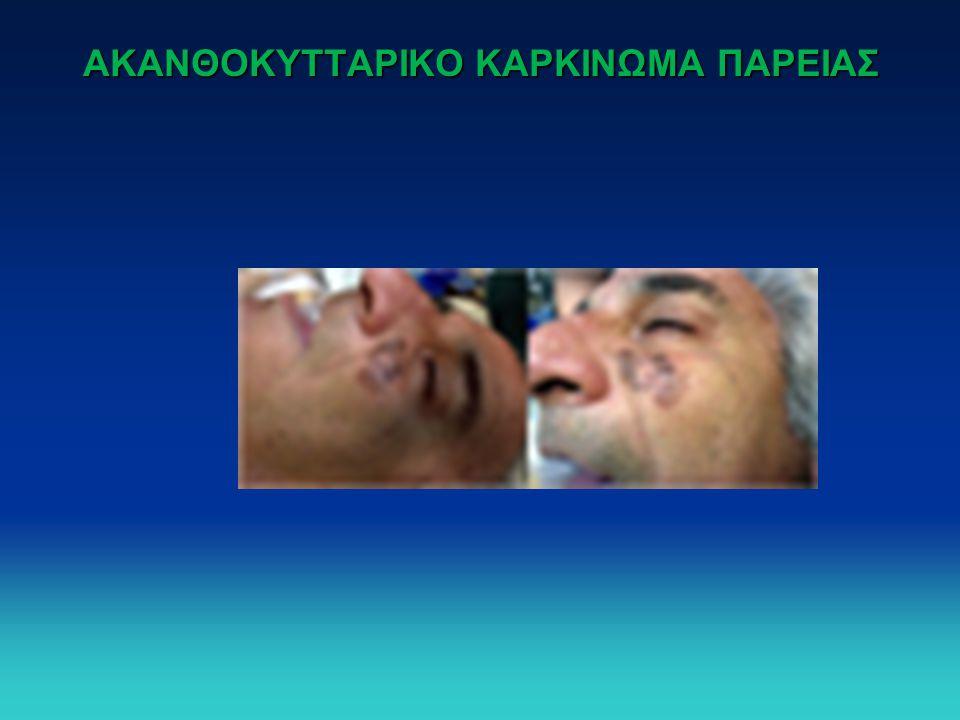 ΑΚΑΝΘΟΚΥΤΤΑΡΙΚΟ ΚΑΡΚΙΝΩΜΑ ΠΑΡΕΙΑΣ