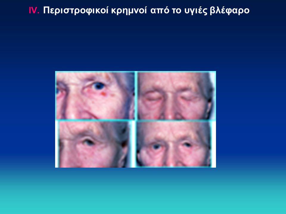 Περιστροφικοί κρημνοί από το υγιές βλέφαρο