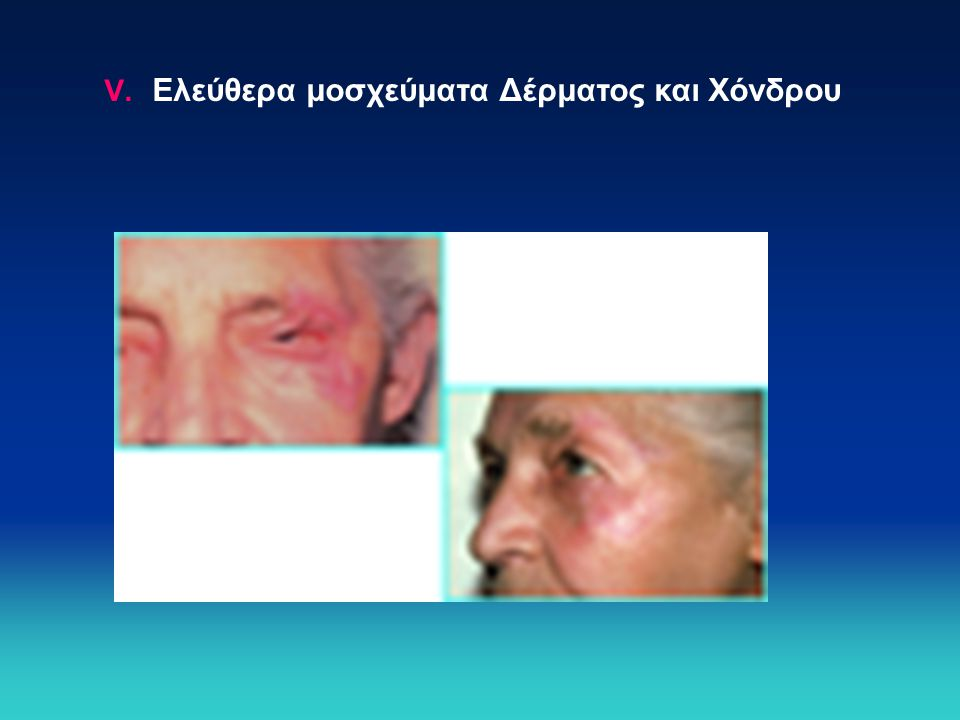 Ελεύθερα μοσχεύματα Δέρματος και Χόνδρου