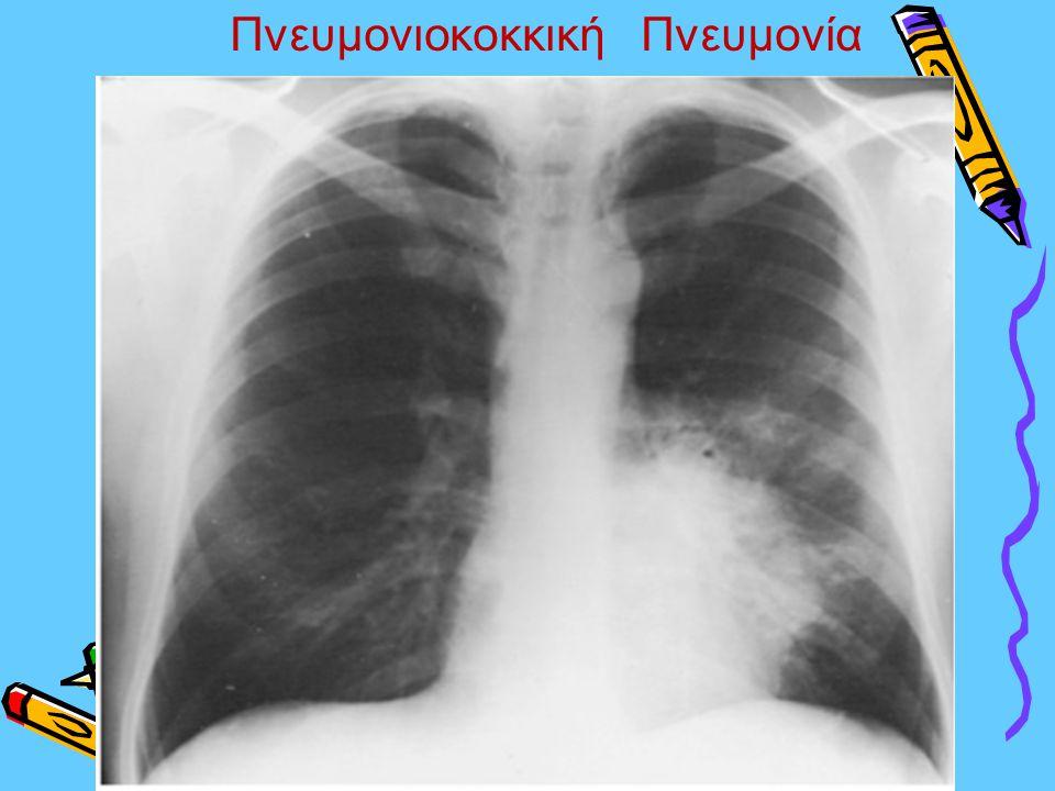 Πνευμονιοκοκκική Πνευμονία