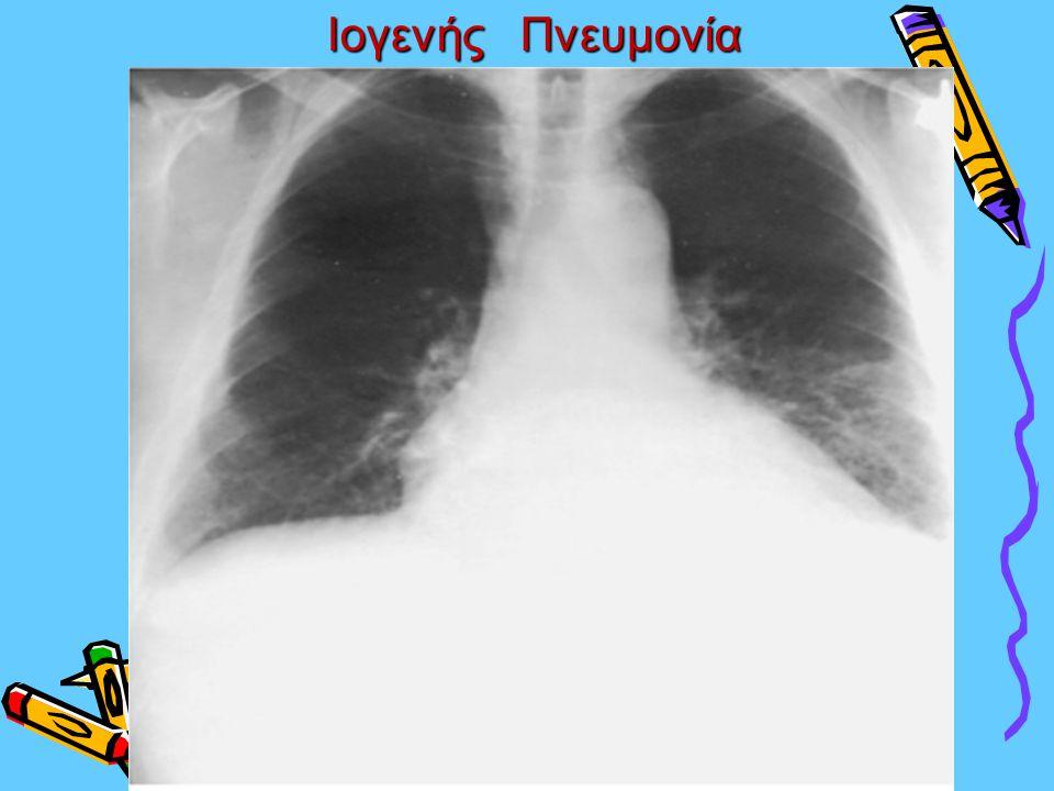 Ιογενής Πνευμονία