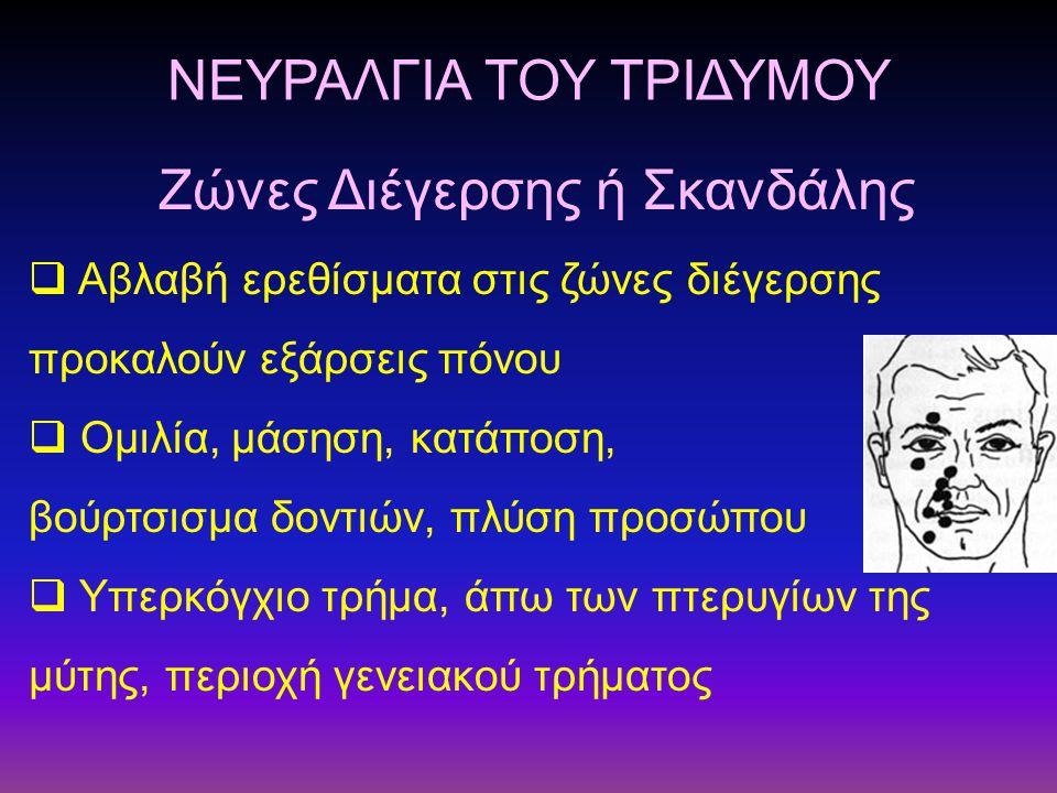 ΝΕΥΡΑΛΓΙΑ ΤΟΥ ΤΡΙΔΥΜΟΥ