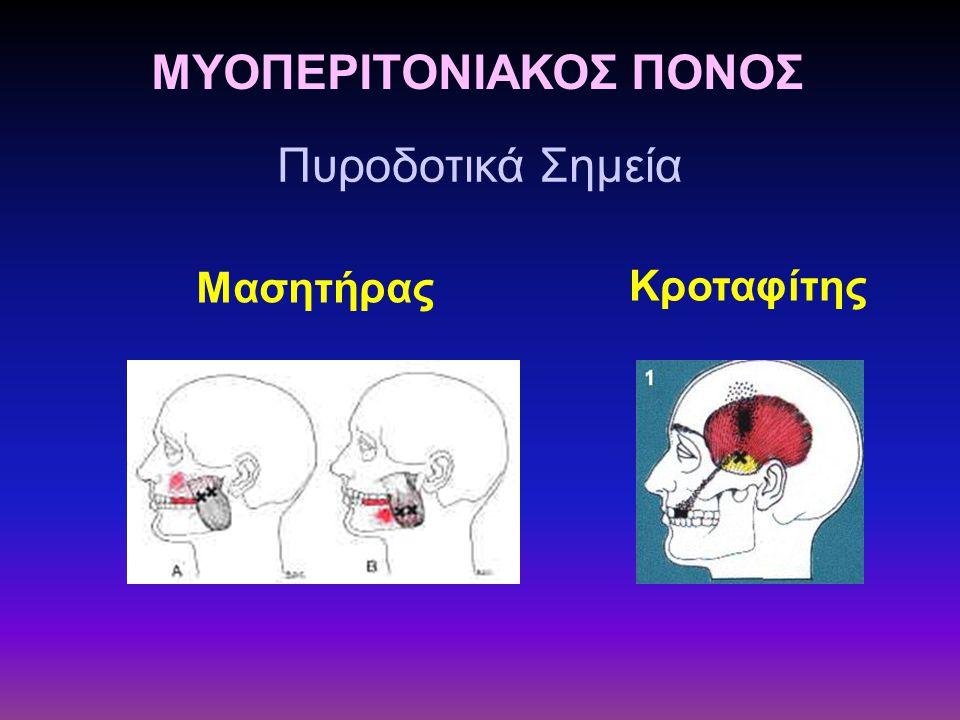 ΜΥΟΠΕΡΙΤΟΝΙΑΚΟΣ ΠΟΝΟΣ