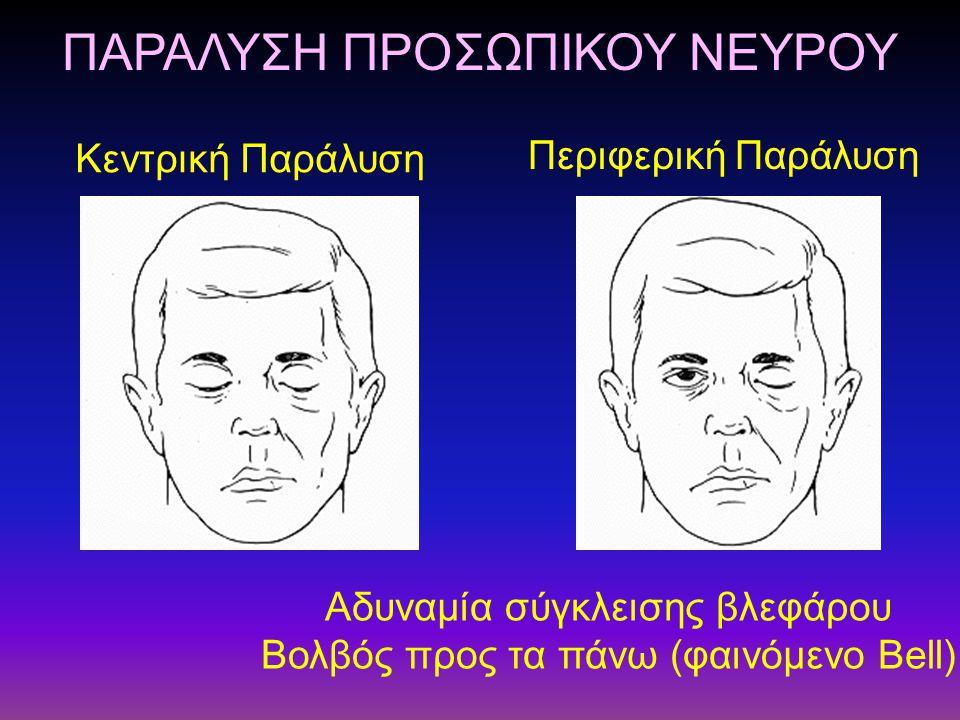ΠΑΡΑΛΥΣΗ ΠΡΟΣΩΠΙΚΟΥ ΝΕΥΡΟΥ