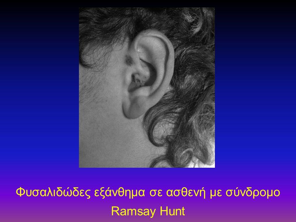 Φυσαλιδώδες εξάνθημα σε ασθενή με σύνδρομο Ramsay Hunt
