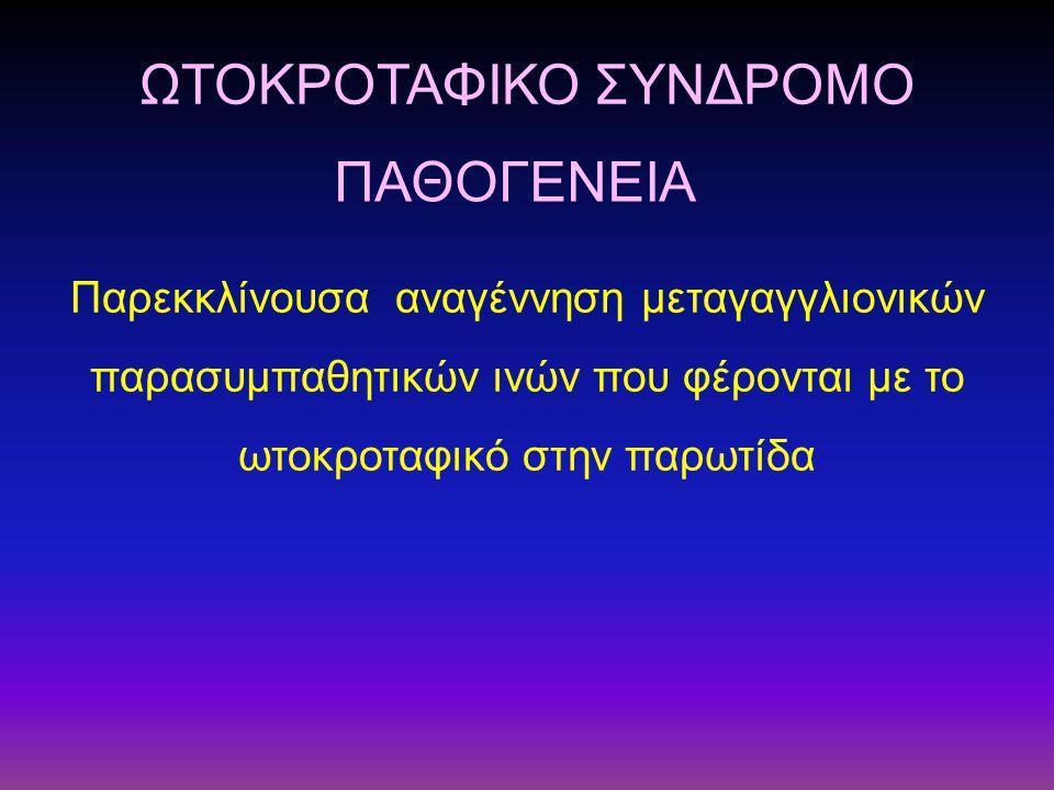 ΩΤΟΚΡΟΤΑΦΙΚΟ ΣΥΝΔΡΟΜΟ