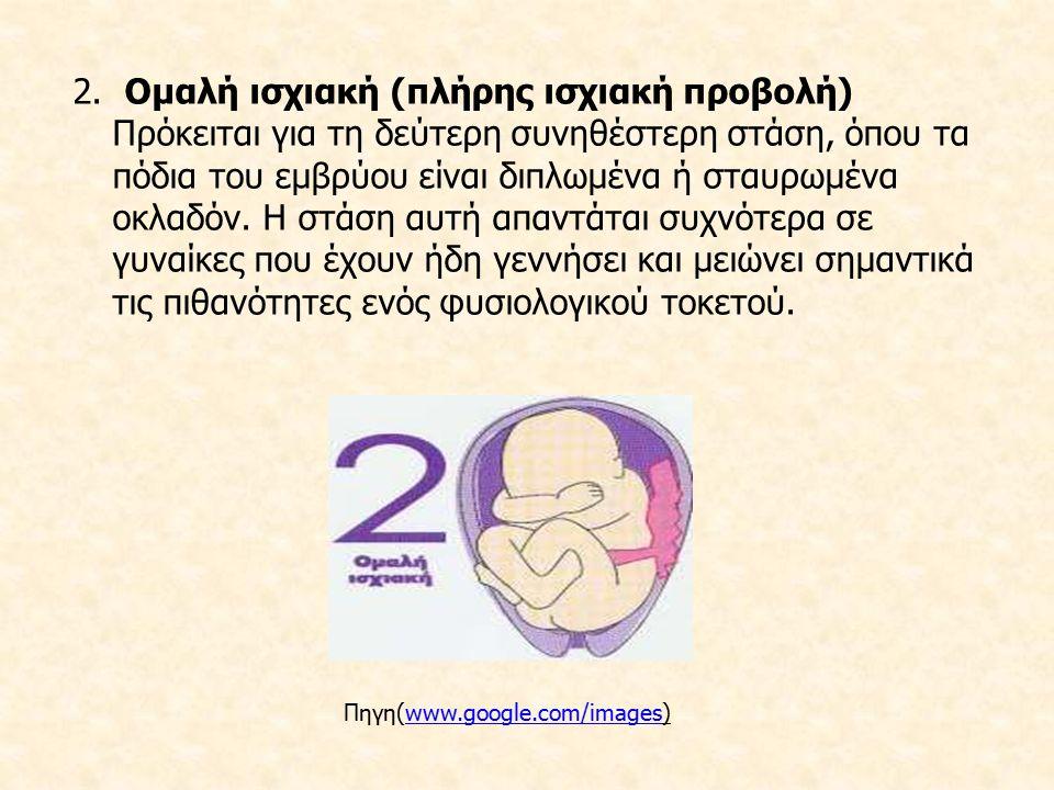 2. Ομαλή ισχιακή (πλήρης ισχιακή προβολή) Πρόκειται για τη δεύτερη συνηθέστερη στάση, όπου τα πόδια του εμβρύου είναι διπλωμένα ή σταυρωμένα οκλαδόν. Η στάση αυτή απαντάται συχνότερα σε γυναίκες που έχουν ήδη γεννήσει και μειώνει σημαντικά τις πιθανότητες ενός φυσιολογικού τοκετού.