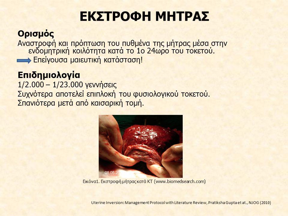 Εικόνα1. Εκστροφή μήτρας κατά ΚΤ (www.biomedsearch.com)