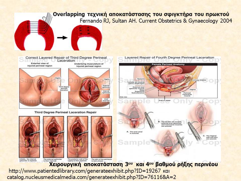Χειρουργική αποκατάσταση 3ου και 4ου βαθμού ρήξης περινέου
