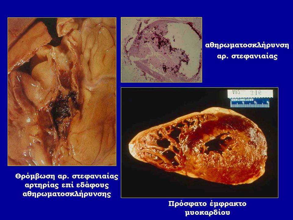 Θρόμβωση αρ. στεφανιαίας αρτηρίας επί εδάφους αθηρωματοσκλήρυνσης