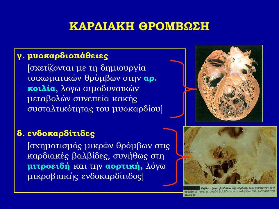 ΚΑΡΔΙΑΚΗ ΘΡΟΜΒΩΣΗ γ. μυοκαρδιοπάθειες