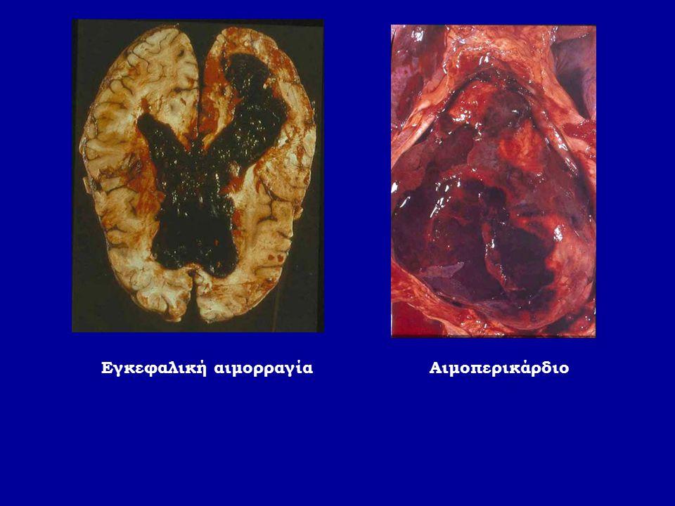 Εγκεφαλική αιμορραγία