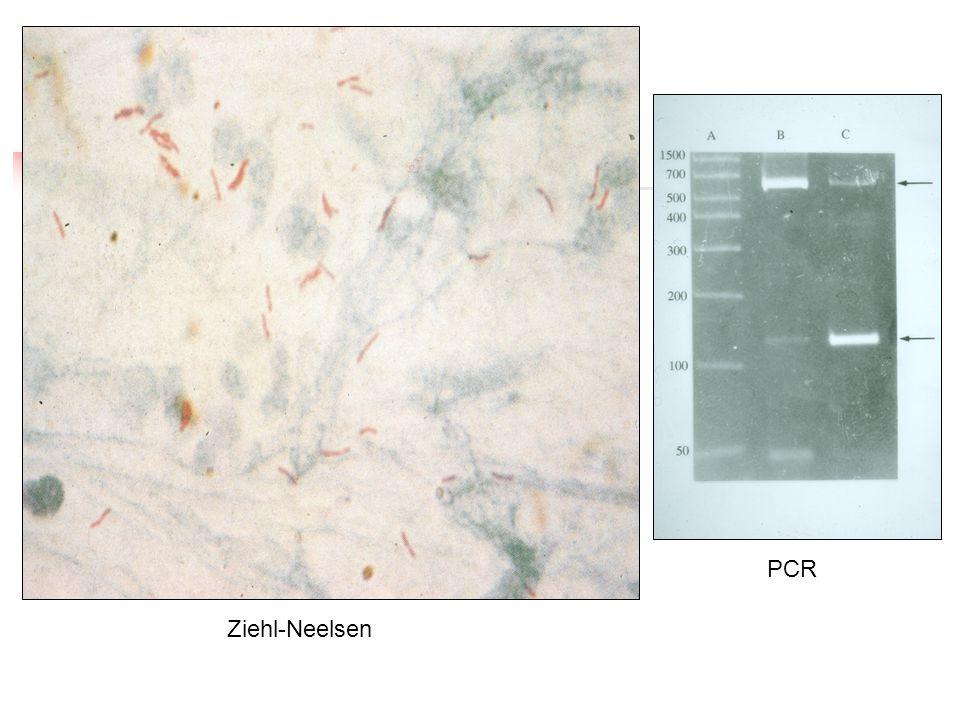 PCR Ziehl-Neelsen