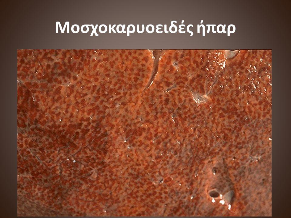 Μοσχοκαρυοειδές ήπαρ