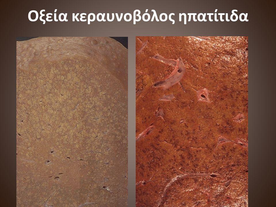 Οξεία κεραυνοβόλος ηπατίτιδα