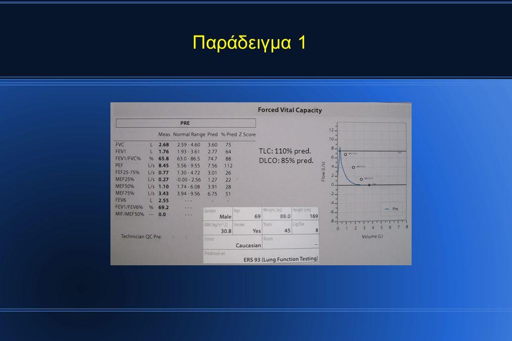 Παράδειγμα 1 TLC: 110% pred. DLCO: 85% pred.