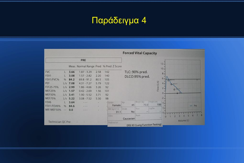 Παράδειγμα 4 TLC: 90% pred. DLCO:95% pred.
