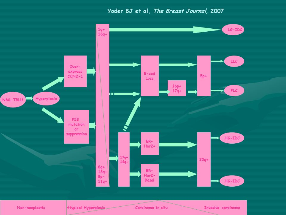 Yoder BJ et al, The Breast Journal, 2007