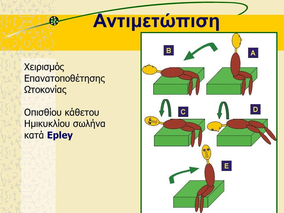Αντιμετώπιση Χειρισμός Επανατοποθέτησης Ωτοκονίας Οπισθίου κάθετου