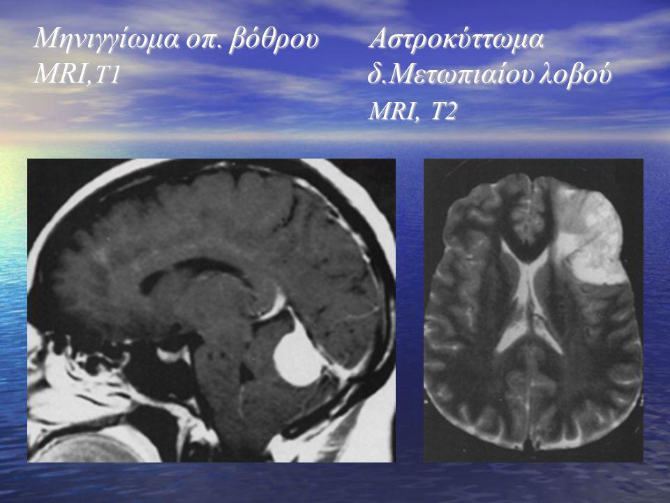 Μηνιγγίωμα οπ. βόθρου Αστροκύττωμα MRI,T1 δ.Μετωπιαίου λοβού MRI, T2