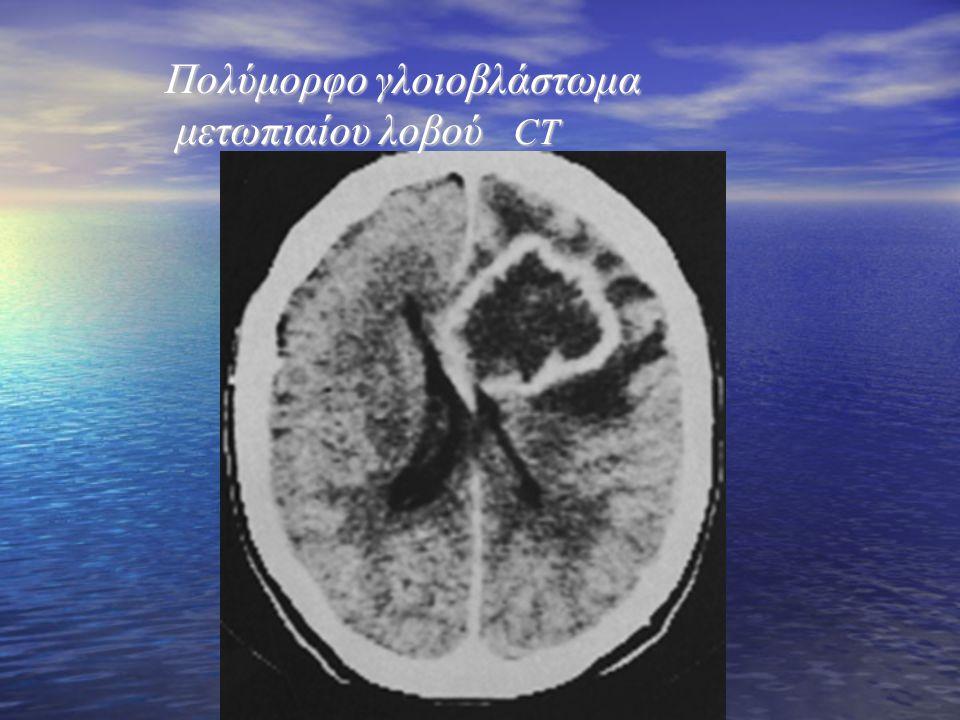Πολύμορφο γλοιοβλάστωμα μετωπιαίου λοβού CT