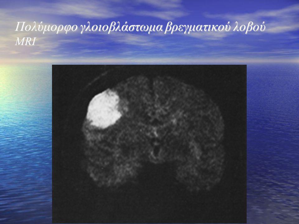 Πολύμορφο γλοιοβλάστωμα βρεγματικού λοβού MRI