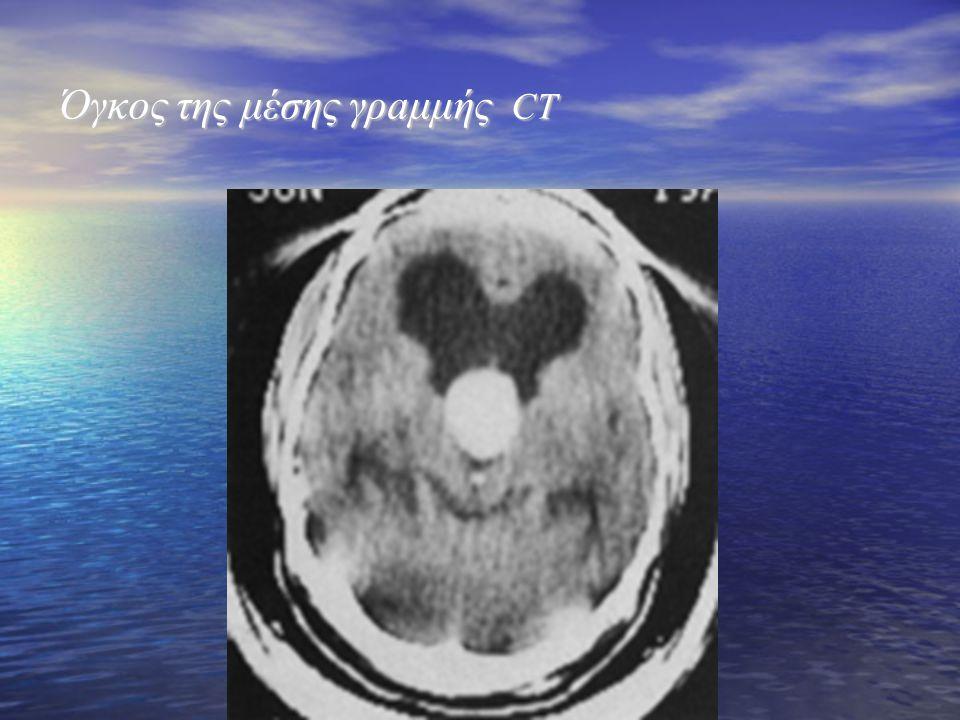 Όγκος της μέσης γρaμμής CT